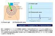 アドバンテスト,光超音波イメージング・システムの開発に成功