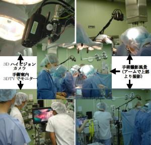 3D-SurgeCam