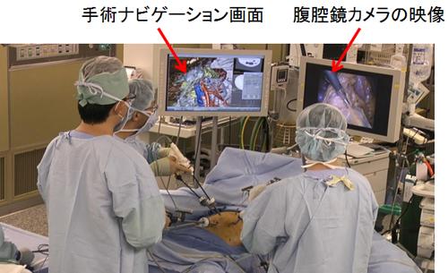 図2 ナビゲーションシステムを利用した手術の様子